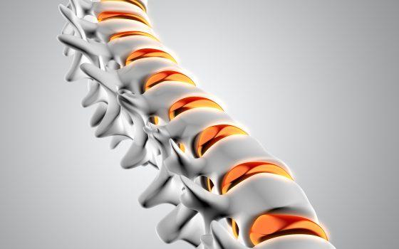 Причини за възникване на гръбначни изкривявания в детска възраст – част 1