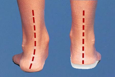 За връзката между плоскостъпието и сколиозата – Част 1 Повече за плоскостъпието