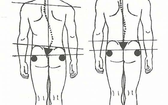 Сколиоза – Деформация на гръбначния стълб, която се състои в изкривяване на гръбнака настрани (на ляво или дясно)